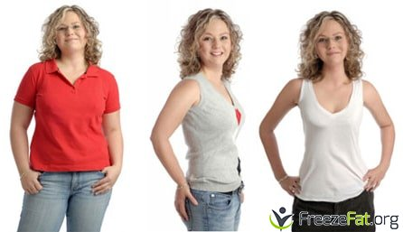 freezefat.org - before and after cool sculpting treatment