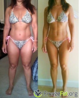 freezefat.org - before and after fat freezing at home