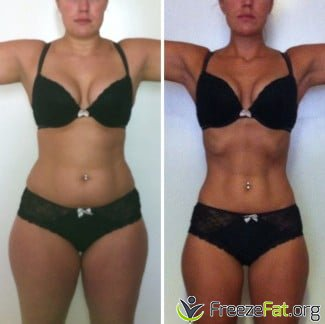 Hall of fame : Your successful cool sculpting and fat ...